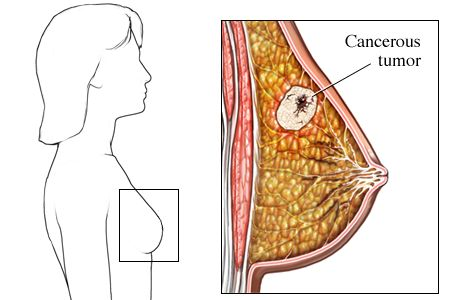 A Visual Guide to Breast Cancer - WebMD